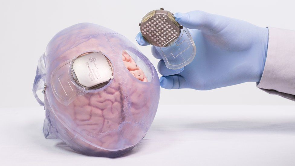 Thibault had surgical treatment to place two implants on the surface of the brain, casing the parts of the brain that control movement.
